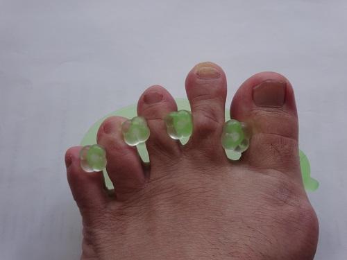 足の指を開く器具(水虫対策)